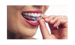 56% off of Complete Invisalign Treatment!