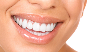 $189 for Limited Oral Exam and Custom Whitening...