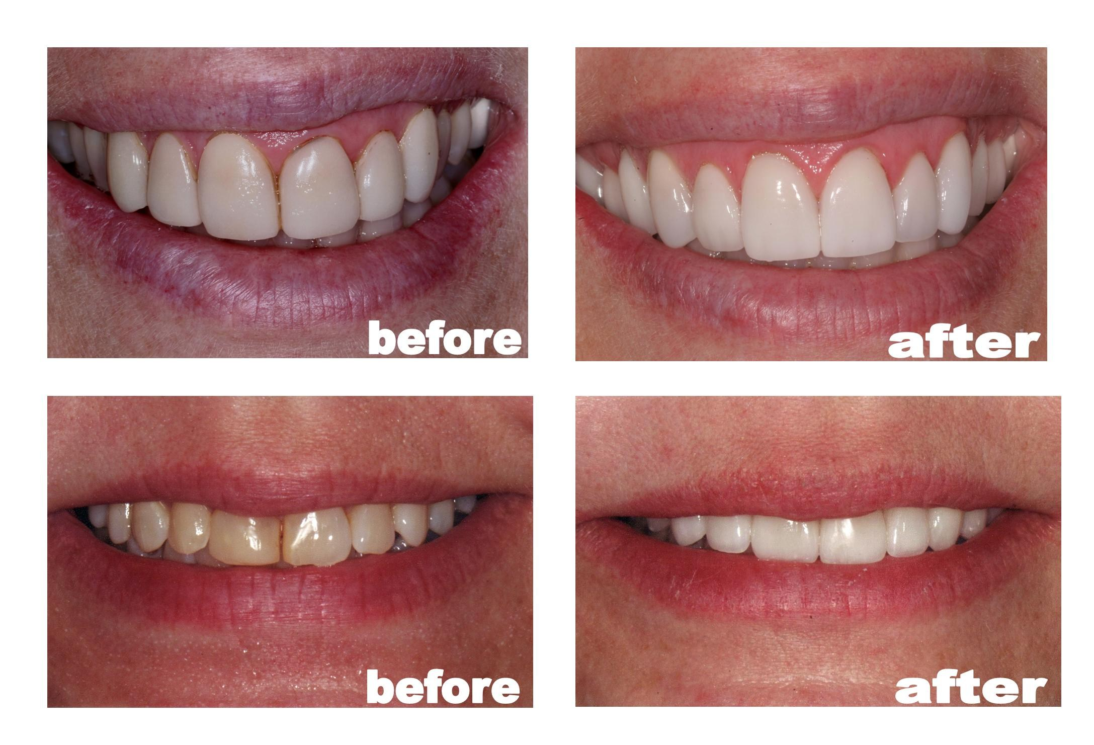 Total Care Dental Madison Wi Reviews