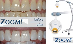 50% off Zoom! Whitening