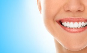 $175 for 1-Hour Chairside Whitening Plus...