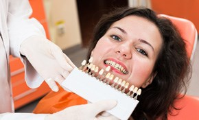 $179 for a Smile Make-Over Consultation and...